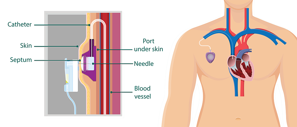 Recovering from a Vascular Access Device Placement